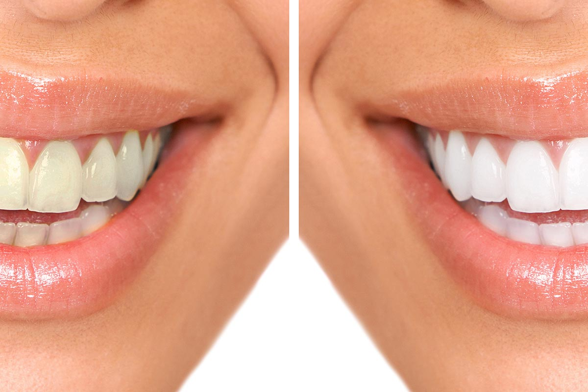 tooth whitening in richmond
